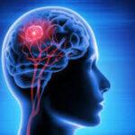 ब्रेन ट्यूमर क्यों समझी जाती है खतरनाक बीमारी, इसके कारण, लक्षण और इलाज के तरीके